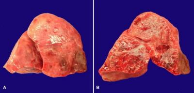 Płuca zmarłego z powodu krztuśca noworodka – zdrowe płuca nie są ani tak spoiste (powinny być raczej lekko gąbczaste), ani tak plamiście, nierównomiernie wybarwione; CC-BY, https://www.ncbi.nlm.nih.gov/pmc/articles/PMC4584670/