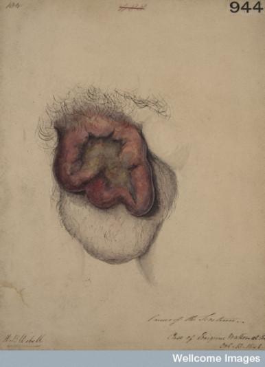 Horace Benge Dobell, dziewiętnastowieczna akwarela przedstawiająca raka moszny, CC BY 4.0, https://wellcomeimages.org/indexplus/image/L0062113.html