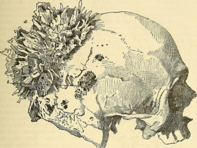 """Kostne igiełki tworzące kostniakomięsaka w tym wypadku mózgoczaszki; E Ziegler, C von Kahlden; """"Lehrbuch der allgemeinen pathologischen anatomie und pathogenese"""" (1887), domena publiczna, https://www.flickr.com/photos/internetarchivebookimages/14577895967/"""
