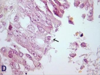 Masy bakterii na powierzchni pozostałości nabłonka oddechowego; CC-BY, https://www.ncbi.nlm.nih.gov/pmc/articles/PMC4584670/