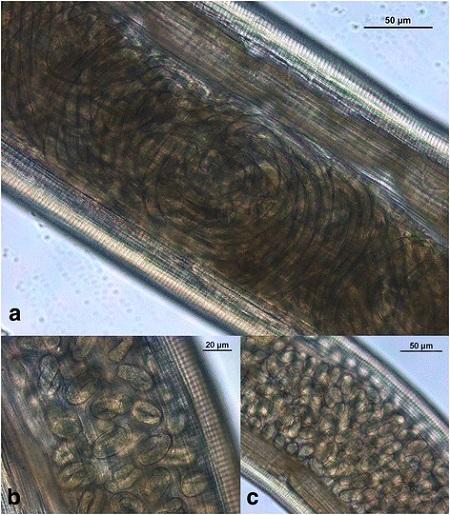 Poszczególne rejony robaczej macicy zawierające larwy oraz mniej i bardziej dojrzałe jaja; CC BY 4.0,https://www.ncbi.nlm.nih.gov/pmc/articles/PMC5390348/