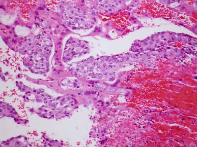 <span>Przerzut choriocarcinoma do płuc; Yale Rosen, CC BY-SA 2.0,</span>https://www.flickr.com/photos/pulmonary_pathology/5433741268/