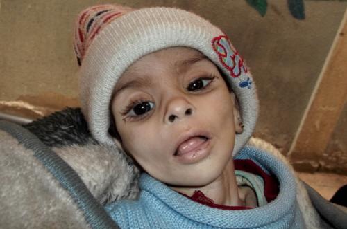 Głodująca palestyńska dziewczynka z obozu Jarmuk pod Damaszkiem, fot. Al Jazeera