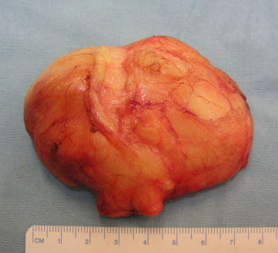 �agodny nowotwór tkanki t�uszczowej, czyli t�uszczak; https://www.thieme-connect.de/products/ejournals/html/10.1186/1749-7221-3-17, CC BY 2.0