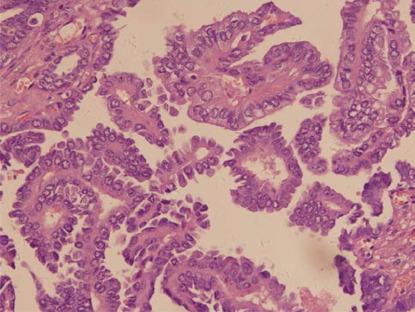 Brodaweczki raka brodawkowatego tarczycy w wolu jajnikowym; CC-BY, https://www.ncbi.nlm.nih.gov/pmc/articles/PMC4616397/