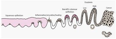 <span>Droga do raka gruczołowego przełyku jest dość długa i przełyk Barretta wcale nie jest jej zwieńczeniem; CC BY-NC 4.0,</span>https://www.ncbi.nlm.nih.gov/pmc/articles/PMC5175244/