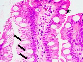 <span>Komórki kubkowe (gwiazdka) w przełyku Barretta – obraz pełen pułapek, bo np. komórki oznaczone strzałkami tylko kubkowe udają, co może niekiedy zmylić diagnozujących;</span>https://www.ncbi.nlm.nih.gov/pmc/articles/PMC4833583/