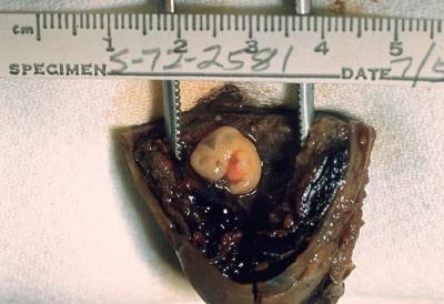 Ciąża jajowodowa; jajowód usunięty operacyjnie i rozcięty, by uwidocznić zarodek i zaczątki łożyska; CDC/Dr. Edwin P. Ewing, Jr., domena publiczna