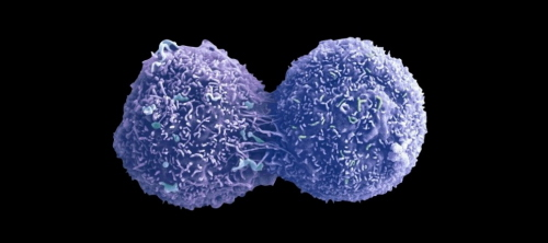 Dividing lung cancer cell. Photo by Anne Weston, LRI, CRUK, Wellcome Images