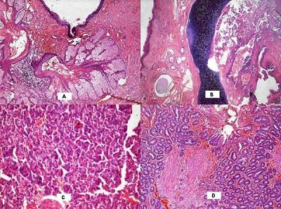 A to potworniak z poprzedniej fotografii pod mikroskopem na różnych przekrojach – widać struktury skórne (naskórek i gruczoły łojowe na fotce A), chrząstkę (to granatowe na B), utkanie trzustki (C) i śluzówki żołądka (D);https://www.ncbi.nlm.nih.gov/pmc/articles/PMC1626485/