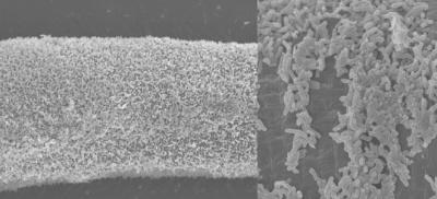 Bakterie pokrywające gęstym kożuszkiem ciało robaka; z prawej – z bliska; CC BY 3.0; http://www.ncbi.nlm.nih.gov/pmc/articles/PMC3898767/
