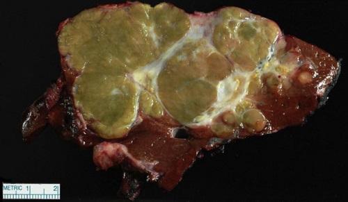 Wokół nieco zielonkawego z białymi zbliznowaceniami poza kilkoma również nowotworowymi guzkami satelitarnymi widać tylko brunatnowiśniowy zdrowy miąższ wątroby;https://www.ncbi.nlm.nih.gov/pubmed/29751881