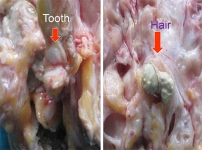 <span>Potworniak śródpiersia po rozcięciu; guz mierzył sobie około 13cm i nie wywoływał odkrztuszania włosów, za to uciskał prawe płuco aż do jego zapadnięcia; po lewej ząb, po prawej masy łojowe i włosy;</span>https://www.ncbi.nlm.nih.gov/pmc/articles/PMC3693251/