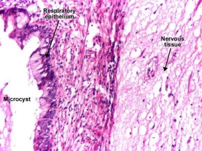 Obraz mikroskopowy potworniaka jajnika – po lewej nabłonek oddechowy, po prawej tkanka nerwowa; Dr Mihai Danciu, http://www.pathologyatlas.ro