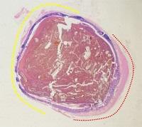 Wypełniony kałową treścią uchyłek wysłany zwykłą (granatowa warstewka) błoną śluzową jelita grubego, częściowo zawierający w ścianie tekże warstwę mięśniową ściany jelita;https://www.ncbi.nlm.nih.gov/pmc/articles/PMC4195049/