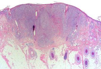 Badanie mikroskopowe potwierdziło podejrzenie czerniaka; CC BY-NC-ND 4.0; https://escholarship.org/uc/item/9gc61299#page-1
