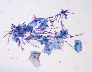 Naprawdę wiemy, jak wygląda Candida pod mikroskopem i nie, nie wygląda ani jak rak, ani jak jakikolwiek inny nowotwór złośliwy; tu akurat pseudostrzępni grzyba w cytologii ginekologicznej; Ed Uthman,https://www.flickr.com/photos/euthman/3952574619