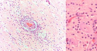 Obraz mikroskopowy mózgu Knuta; widoczny naciek zapalny (ciemniejsze fioletowe kropki) i niezmienione komórki nerwowe – ciemniejsze różowe plamy na powiększeniu po prawej; CC BY 4.0; http://www.nature.com/articles/srep12805