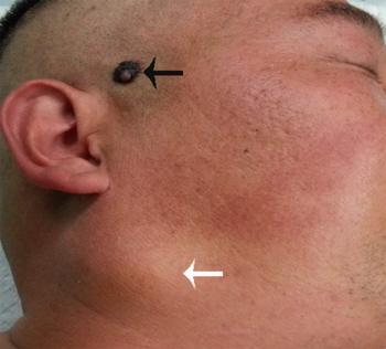 Czerniak skóry owłosionej głowy z przerzutem w śliniance; CC BY-NC 3.0; http://www.ncbi.nlm.nih.gov/pmc/articles/PMC4348854/