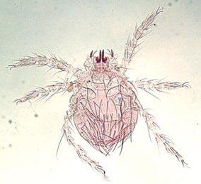Szczeciniasta larwa z bliska;https://www.esccapuk.org.uk/page/Mites/35/