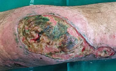 Postać skórna zespołu; to owrzodzenie (ze stanem zapalnym tkanki podskórnej i kości) pacjent wytworzył sobie własnoręcznie, po czym podtrzymywał starannie, rzecz zakończyła się amputacją; CC BY 3.0,https://www.ncbi.nlm.nih.gov/pmc/articles/PMC4494498/
