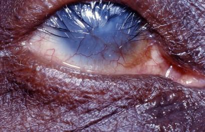 Jaglica uchodzi za najczęstszą zakaźną przyczynę ślepoty na świecie; Margreet Hogeweg, CC BY-NC 2.0;https://www.flickr.com/photos/communityeyehealth/8489112594/