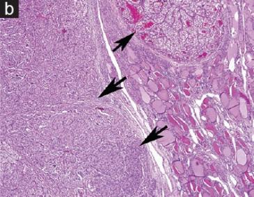 <span>Pola jasnokmórkowych przerzutów raka nerki (strzałki), z prawej i u dołu zwykłe pęcherzyki tarczycowe;</span>https://www.ncbi.nlm.nih.gov/pubmed/28937391
