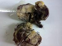 <span>Guzek pełen futerka wycięty ze śródpiersia pewnej dwudziestolatki podejrzewanej o zmiany gruźlicze z powodu nawracającego krwioplucia;</span>https://www.ncbi.nlm.nih.gov/pmc/articles/PMC3767022/