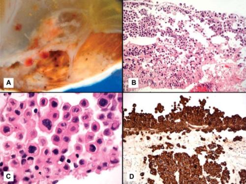 W rzadkich przypadkach niezbędne okazuje się usunięcie dotkniętej chorobą gałki ocznej, tu przypadek podwójnie rzadki, bo przerzut raka pęcherza dotyczył siatkówki (na pierwszym zdjęciu guz naciekający odwarstwiającą się siatkówkę, na kolejnych obraz mikroskopowy, w tym immunohistochemia potwierdzająca pochodzenie zmiany); https://www.ncbi.nlm.nih.gov/pubmed/27930437