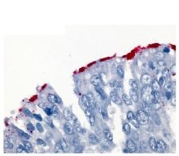 Wybarwione odpowiednimi przeciwciałami na czerwono pałeczki krztuśca na powierzchni nabłonka oddechowego; https://www.ncbi.nlm.nih.gov/pmc/articles/PMC3723573/