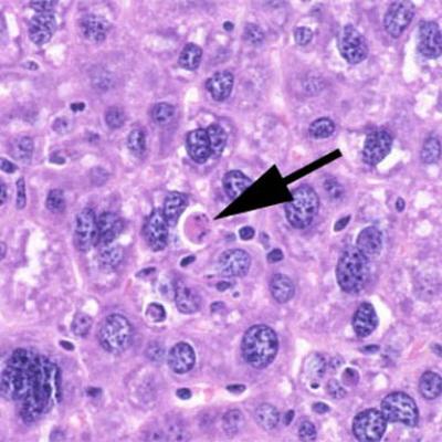 Spokojnie i bez odczynu zapalnego umierająca na drodze apoptozy komórka wątroby; domena publiczna, NIH, https://pl.wikipedia.org/wiki/Plik:Apoptosis_mouseliver.jpg