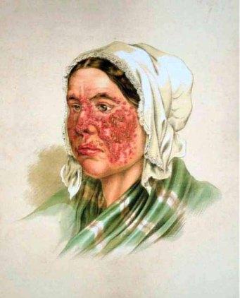 Zmiany skórne twarzy w przebiegu tocznia; domena publiczna, Atlas der Hautkrankheiten. Farblithographie von Anton Elfinger, 1856, za wikipedią.