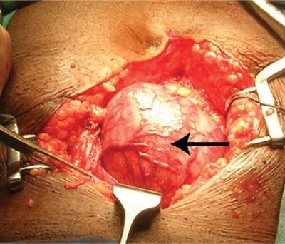 Przy tak wielkich gruczołach jak ten tu (740 g) zwykle bez chirurgii się nie obejdzie; CC BY 4.0,https://www.ncbi.nlm.nih.gov/pmc/articles/PMC3997546/