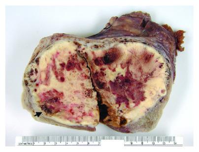 Nisko zróżnicowany rak tarczycy w wolu jajnikowym; CC-BY, https://www.ncbi.nlm.nih.gov/pmc/articles/PMC4491406/