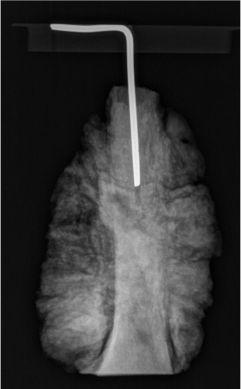 Obraz radiologiczny zachowanej w zbiorach muzealnych amputowanej kończyny historycznego pacjenta; http://www.bmj.com/content/355/bmj.i6515