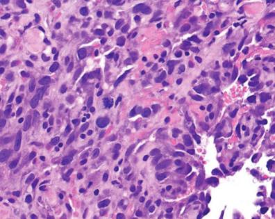 Angiosarcoma. Intensywnie dzielące się (gwiazdkowata mitoza pośrodku i nieco po lewej) pulchniutkie komórki śródbłonka, a pomiędzy nimi uciśnięte wąskie przestrzenie naczyniowe z nielicznymi czerwonymi krwinkami;https://escholarship.org/uc/item/0053z21b