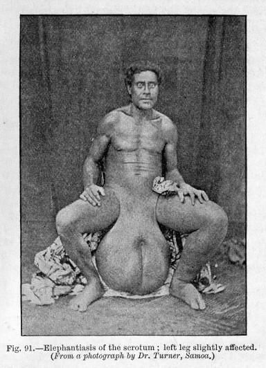 Obrzęk limfatyczny moszny w przebiegu filariozy; Wellcome Library, 1909, CC BY 4.0https://de.wikipedia.org/wiki/Elephantiasis