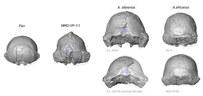 """<span>Poprzeczny zarys podstawy czaszki jest wypukły u afrykańskich małp człekokształtnych, podczas gdy A. afarensis pokazuje kątowe przejście między karkowym regionem a bardzo rozbudowanymi wyrostkami sutkowymi (czerwone przerywane linie). Pod tym względem A. afarensis wyprzedza morfologię masywnych australopiteków. MRD wykazuje prymitywny, wypukły zarys podstawy, chociaż wyrostki sutkowate są rozbudowane. MRD jest także prymitywny pod względem wielkiej długości płaszczyzny karkowej (czarne strzałki). Jednak jest podobny do A. afarensis w konfiguracji grzebienia skroniowo-karkowego (białe przerywane linie), pola nagiego (niebieski trójkąt) i ogólnie """"dzwonowatego"""" kształtu tylnego zarysu (tj. ciemieniowe ściany są lekko zbieżne i największa szerokość znajduje się u podstawy poprzez powiększone wyrostki sutkowate).</span>"""