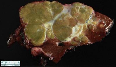 Wokół nieco zielonkawego z białymi zbliznowaceniami raka poza kilkoma również nowotworowymi guzkami satelitarnymi widać brunatnowiśniowy zdrowy miąższ wątroby;https://www.ncbi.nlm.nih.gov/pubmed/29751881