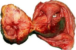 Polip pęcherzyka (strzałka pokazuje szypułę, na której siedzi rozcięty na pół polip widoczny po lewej) może się nieoczekiwanie okazać przerzutem raka nerki;https://www.ncbi.nlm.nih.gov/pmc/articles/PMC5379575/