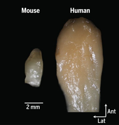 (From paper): Comparison of the mouse and human olfactory bulb. View is of the ventral aspect of the left olfactory bulb. Both bulbs are at the same scale.