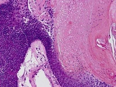 <span>Pilomatrixoma – po lewej drobne ciemne komórki nowotworowej macierzy włosa, po prawej ich duchy; LWozniak&KWZielinski, CC BY-SA 3.0,</span>https://commons.wikimedia.org/w/index.php?curid=11990417