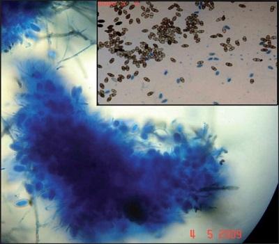 <span>Lasiodiplodia theobromae wydobyty z zatok trzydziestoletniej pacjentki;</span>https://www.ncbi.nlm.nih.gov/pubmed/20404468