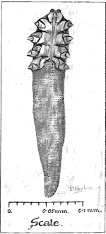 Lancet, 1925, nużeniec wyrysowany przez autorki pracy notującej obecność zwierzaków w gruczołach okolicy brodawki sutkowej; http://www.sciencedirect.com/science/article/pii/S0140673601396423