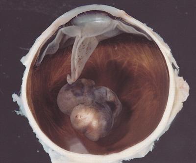 Czerniak wewnątrz gałki ocznej (tak, usuniętej i przekrojonej na pół) – nierównomiernie wybarwiony guzowaty twór; AFIP, PEIR Digital Library (Pathology image database); domena publiczna
