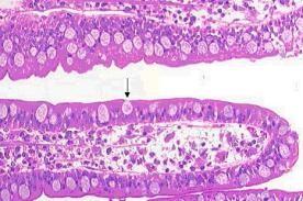 <span>Strzałka wskazuje rozdętą od śluzu komórkę kubkową w jelicie cienkim;</span>https://en.wikipedia.org/wiki/Goblet_cell#/media/File:Gobletcell.jpg