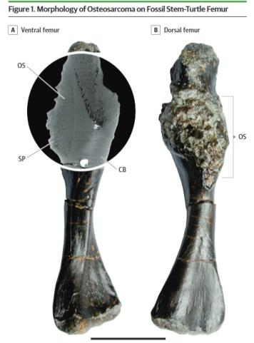 <span>Kość udowa pechowego Pappochelys rosinae, zdjecie preparatu z wstawką z tomografii komputerowej, skrót OS oznacza kostniakomięsaka, osteosarcoma właśnie, linia podziałki to 1 cm, jak widzicie nie było to wielkie zwierzątko; JAMA Oncology (2019),</span>https://jamanetwork.com/journals/jamaoncology/article-abstract/2723578