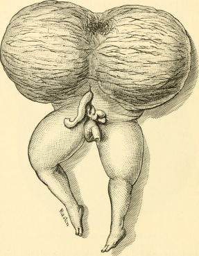"""Zjawisko rzadkie, aczkolwiek od dawna medycynie znane; """"The science and art of midwifery"""" (1897), domena publiczna, https://www.flickr.com/photos/internetarchivebookimages/14576785638/"""
