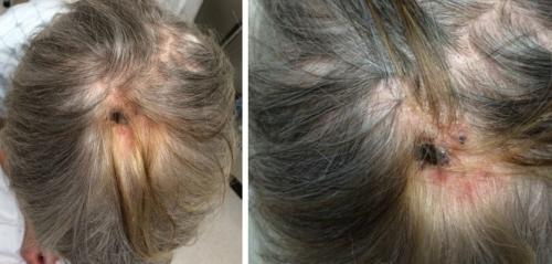 Pośród siwiejących włosów pacjentki pojawiło się pasmo wybarwione złocistobrązowo; w centrum widoczny rozwinięty w tym miejscu owrzodziały czerniak; CC BY-NC-ND 4.0; https://escholarship.org/uc/item/9gc61299#page-1