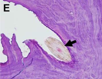 W centrum mas tworzących złóg znaleziono drobny włos; CC BY 4.0,https://bmcophthalmol.biomedcentral.com/articles/10.1186/s12886-018-0915-y